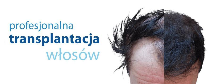 Przeszczep włosów Bielsko Biała
