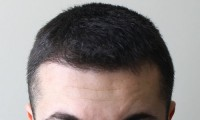 Efekty po zabiegu przeszczepu włosów.