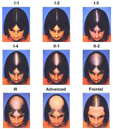 wypadanie włosów po usunięciu jajników
