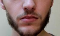 Przeszczep włosów na brodę